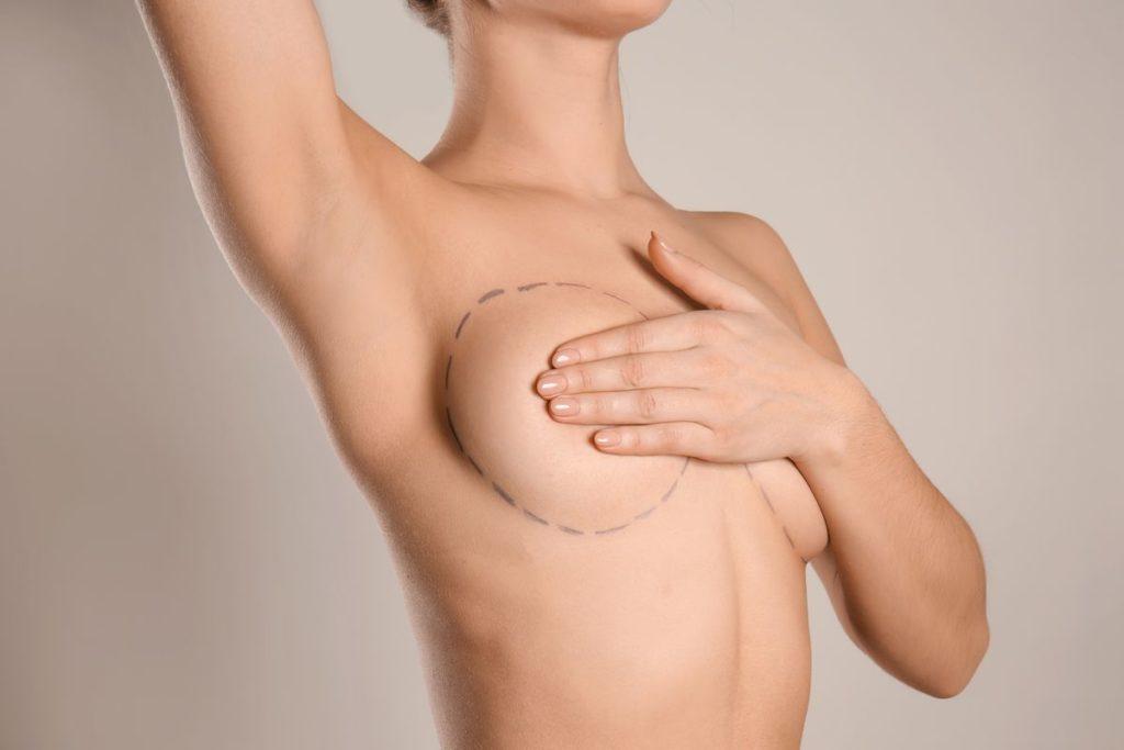 Powiększenie piersi w gabinecie medycyny estetycznej Derm-Estetyka w Gdyni